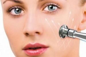 Схема работы алмазного пилинга кожи лица