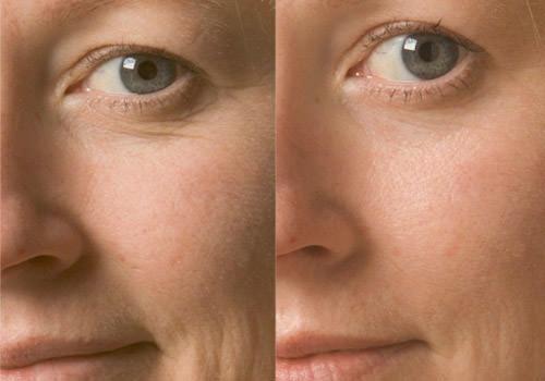 Фото до и после алмазного пилинга