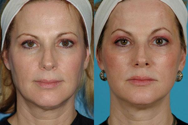 Эффект от эрбиевого лазера - пилинг для скрытия старения кожи