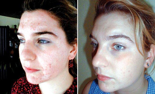 Влияние химического пилинга на кожу