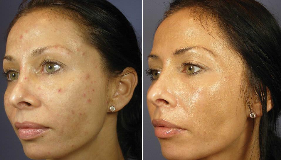 Кожа после алмазного пилинга - фото до и после