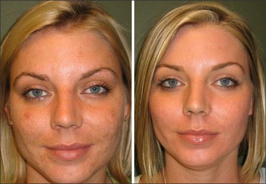 Фотографии до и после мезопилинга