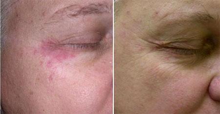 Эффект от фототерапии в районе глаз