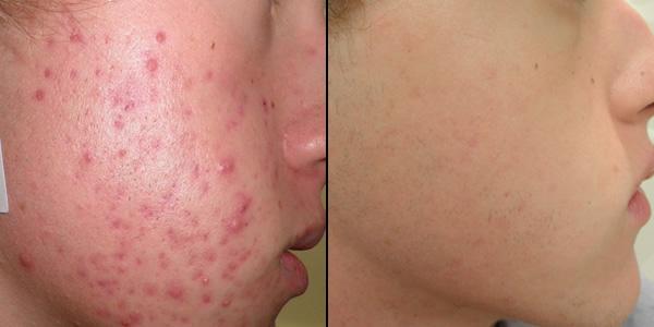 Результат действия Роаккутана на кожу лица