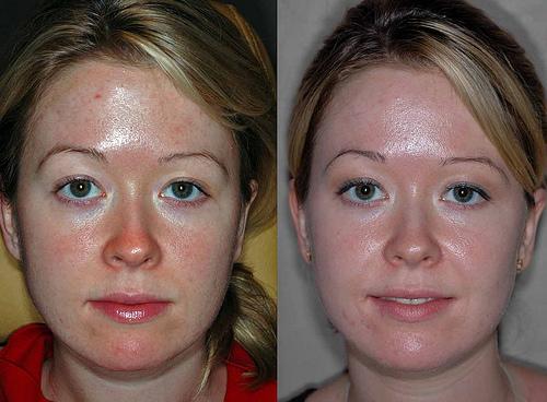 Результат очищения кожи пилингом