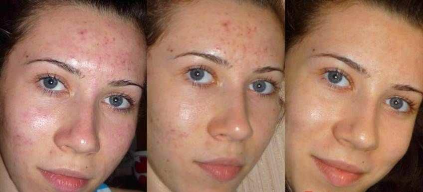 Фотография до и после механической чистки лица