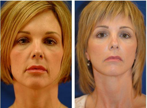 Фото до и после лазерной чистки лица
