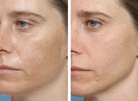 Фото после ультразвуковой чистки лица