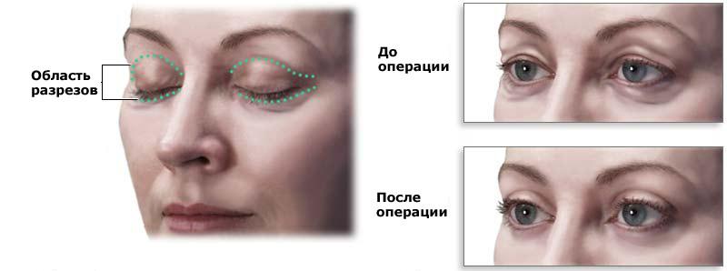 Ориентальная блефаропластика