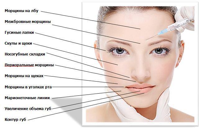 Ушиб брови как лечить ушиб