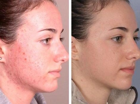 До и после лечения демодекоза