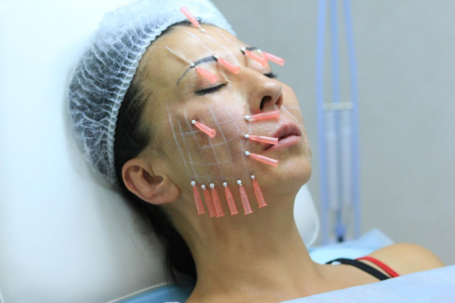 Девушка проводит процедуру подтяжки лица нитями
