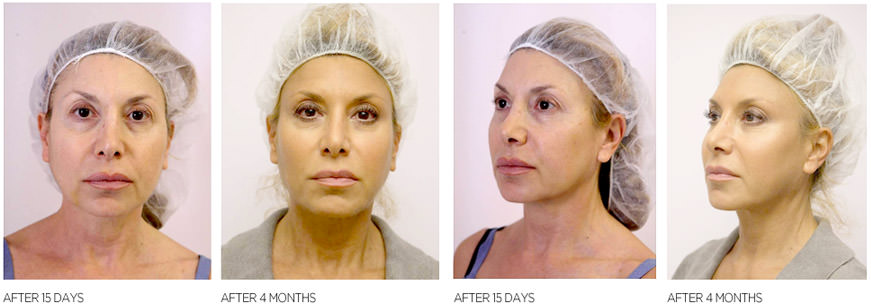 До и после процедуры подтяжки лица нитями
