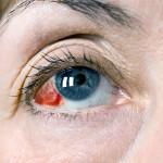 Глаз с лопнувшим капиляром