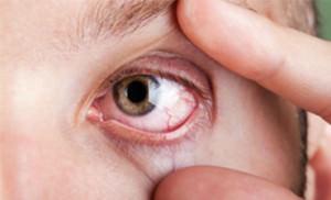 Глаз с лопнувшим капилляром