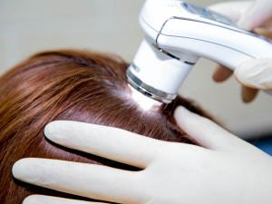 Аппарат от выпадения волос