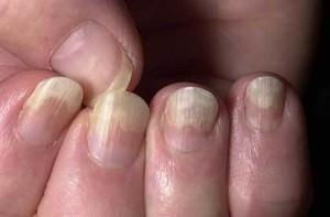 Чешуйчатый лишай ногтей