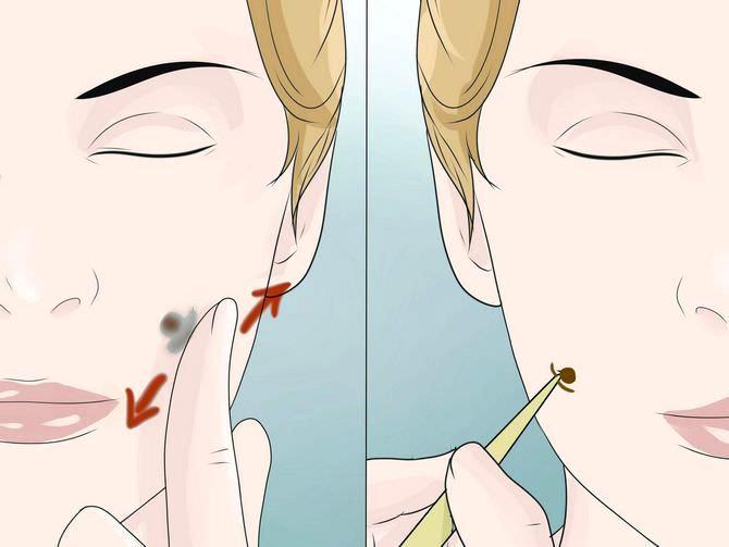 Девушка делает ямочки на щеках