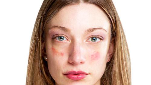 Девушка с красными пятнами на лице