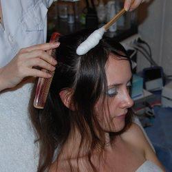 Девушка лечат волосы от дерматита