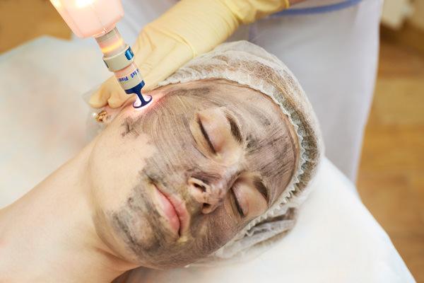 Девушке проводят карбоновый пиллинг лица