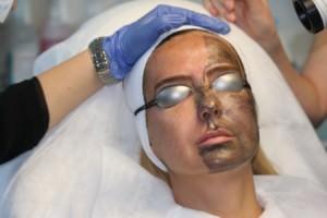 Девушке проводят карбоновый пилинг лица
