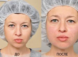 До и после применения филлеров