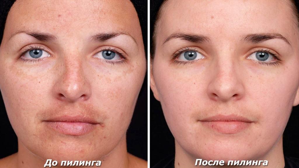 До и после процедуры глубокого пилинга лица