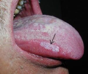 Гиперкератотическая форма красного лишая в полости рта