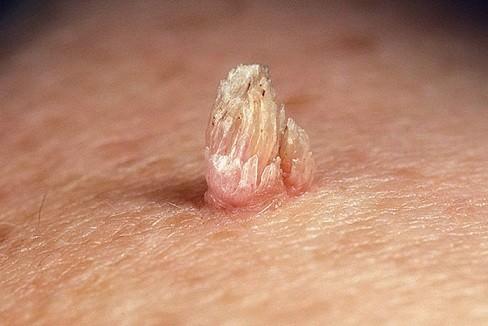 Папиллома на коже