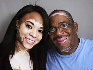 Мужчина и женщина с белыми пятнами