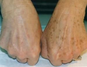 Пигментные пятна - до и после фототерапии