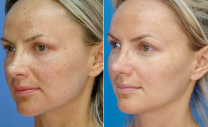 Карбоновый лазер - фото до и после процедуры