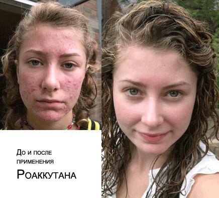 До и после Роаккутана