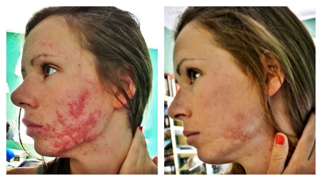 Эффект от применения акнекутана от прыщей - фото до и после приема
