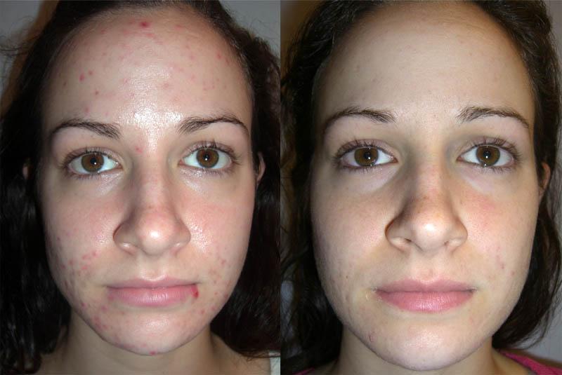 Результат после химического пилинга (до и после)