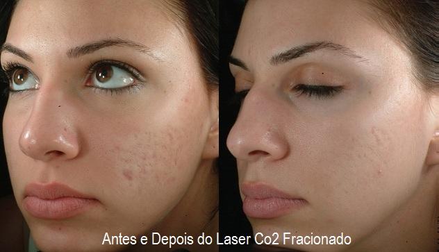 Результат лазерного пилинга лица - до и после