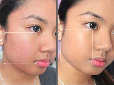 Медерма - результат в уменьшении шрамов на лице
