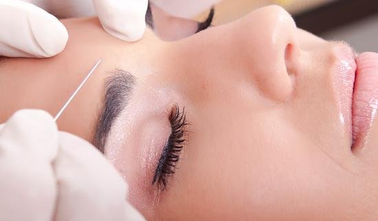 Процедура выравнивания кожи мезопилингом
