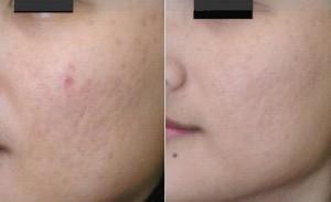 Кожа до и после мезопилинга
