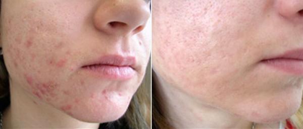 Результат лазерной терапии против акне - до и после процедур