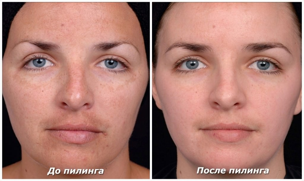 Фото до и после химического пилинга лица