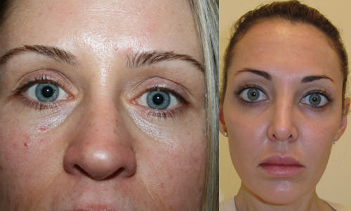 Эффект от заморозки лицевых мышц ботоксом