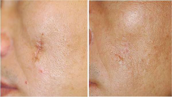 Фото до и после применения лечения рубца
