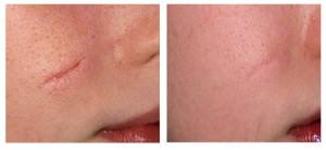 Келоидный рубец - фото до и после процедуры удаления рубца