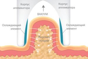 Криолиполиз