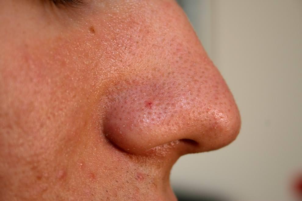 Комедон на носу у человека
