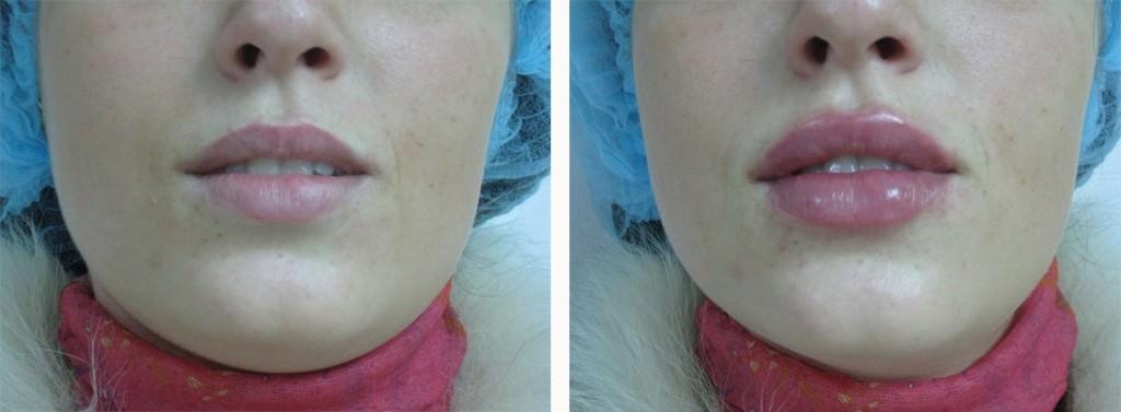 До и после увеличения губ кислотой