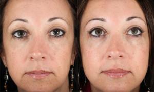 Девушка до и после гиалуроновой кислоты