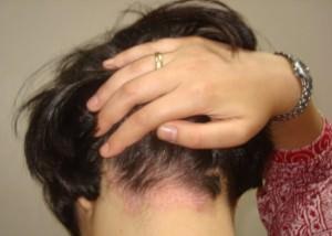 Девушка с псориазом на голове